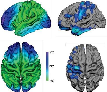 Conexiones neuronales: demostrada su relación con el Autismo